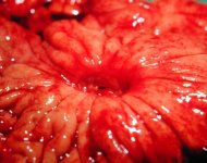 Язва желудка, язва двенадцатиперстной кишки