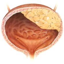 Лечение неинфекционного цистита у женщин
