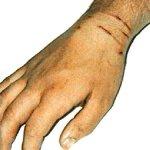 Первая помощь при царапинах и других повреждениях кожи