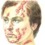 Библейская болезнь