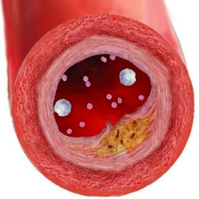 снижение холестерина беременности