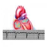 Аритмии сердца (тахикардия, брадикардия)