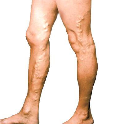 Целлюлит на ногах и варикоз лечение