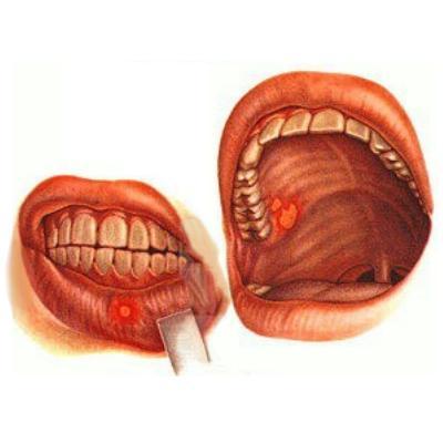 Фото как выглядит стоматит.