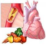Атеросклероз. Практика лечения растениями