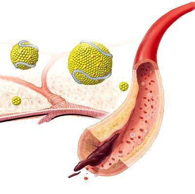 Перечень продуктов повышающие холестерин