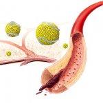 Холестерин и другие причины атеросклероза