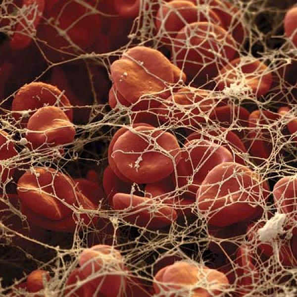 Фибриноген и фибринолитические средства
