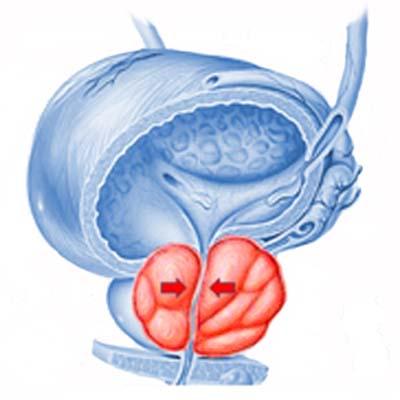 Эхо-признаки хронического простатита